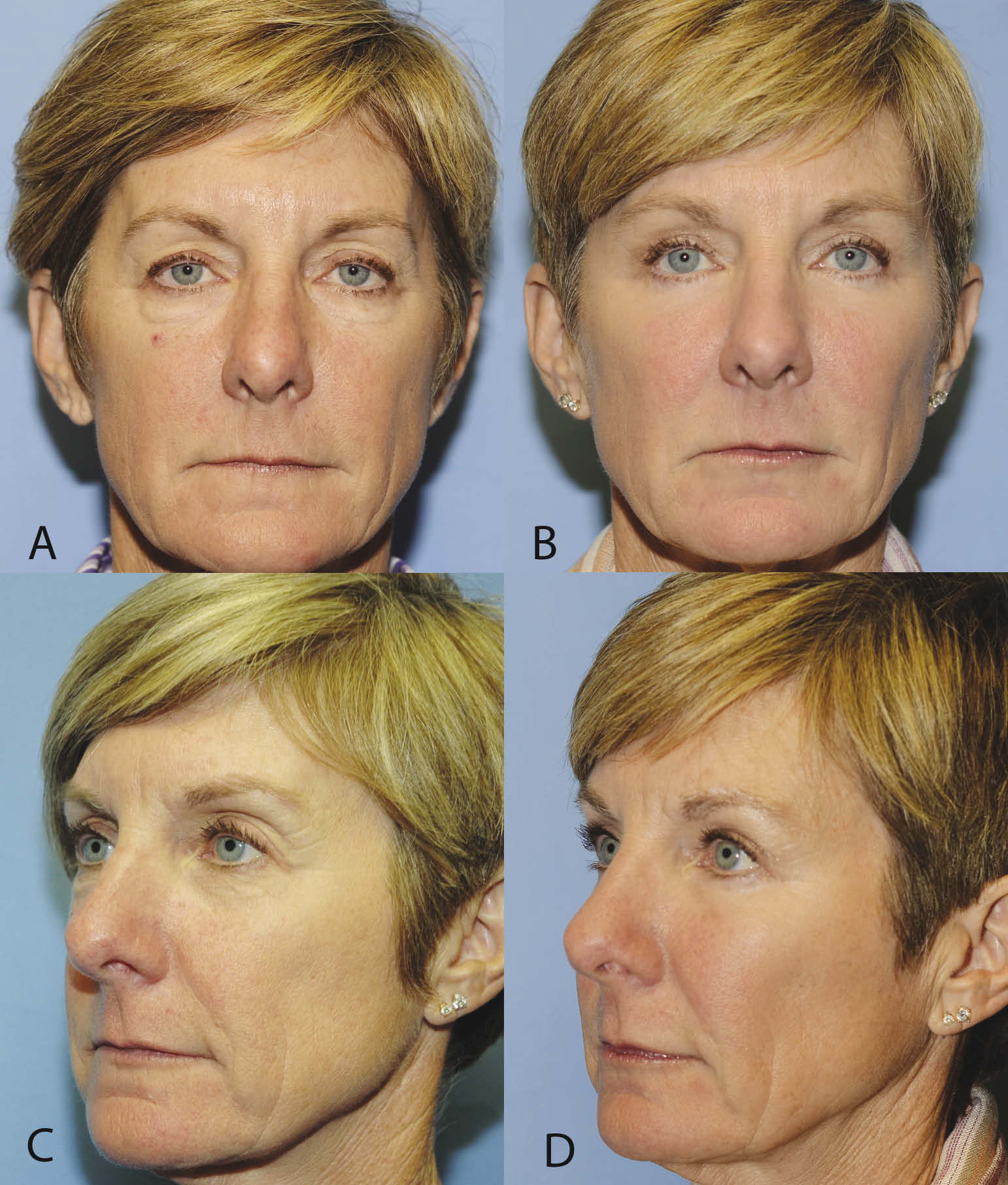 10-month result. Upper and lower blepharoplasty with fat repositioning and augmentation