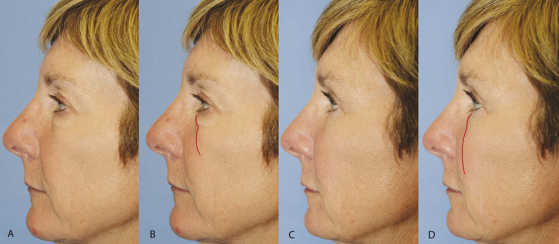 Upper and lower blepharoplasty with fat repositioning and augmentation