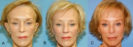 Correction of hollow temples and facial features - before and after photos