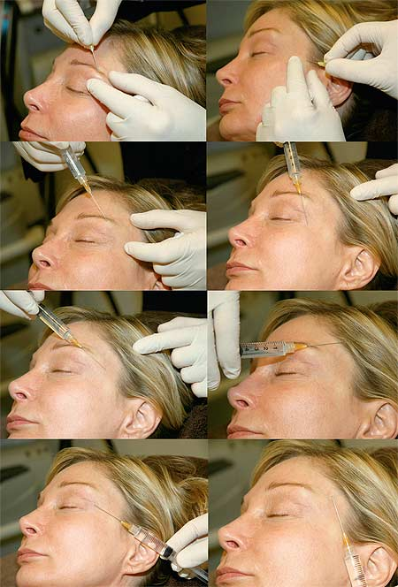 Demonstration of injecting a hyaluronic acid filler into a woman's temple