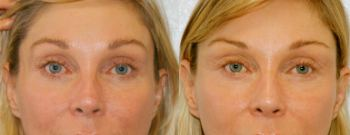 Before-and-after result with diluted hyaluronic acid in woman's face