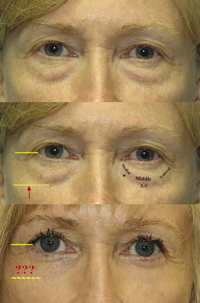 Before and after of eyelid surgery for the lower eyelid with fat repositioning only