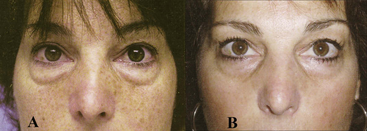 One-year result by another surgeon using subtractive blepharoplasty techniques