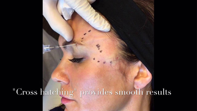 Video of Dr. Miller performing aesthetic procedures