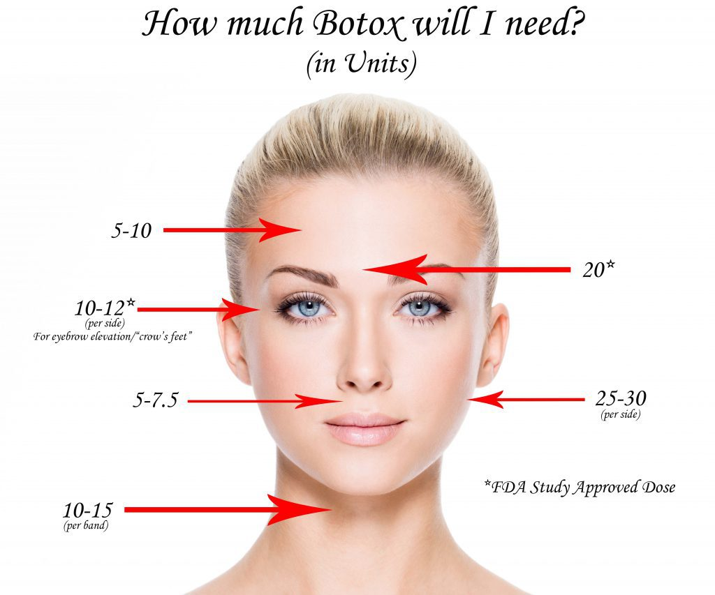 Amount of BOTOX needed