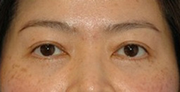 Eyelid Surgery Orange County