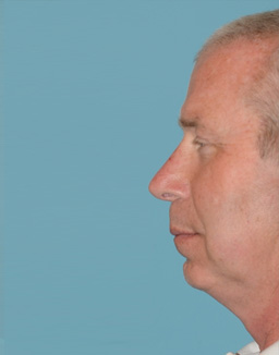 Rhinoplasty Orange County